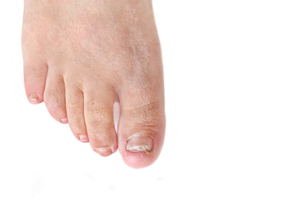 Toenail fungus infection – dermatophytic onychomycosis