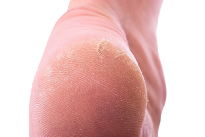 Closeup of a person with dry skin on heel . Isolated on white background. With clipping path inckuded.